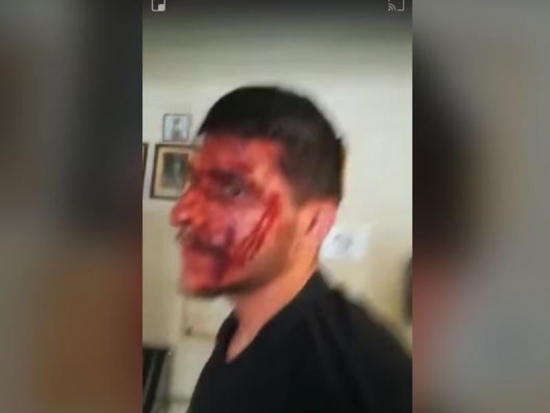 Αστυνομικοί της ΔΙΑΣ χτύπησαν επανειλημμένα δύο νεαρούς στα Σεπόλια-Βίντεο ντοκουμέντο